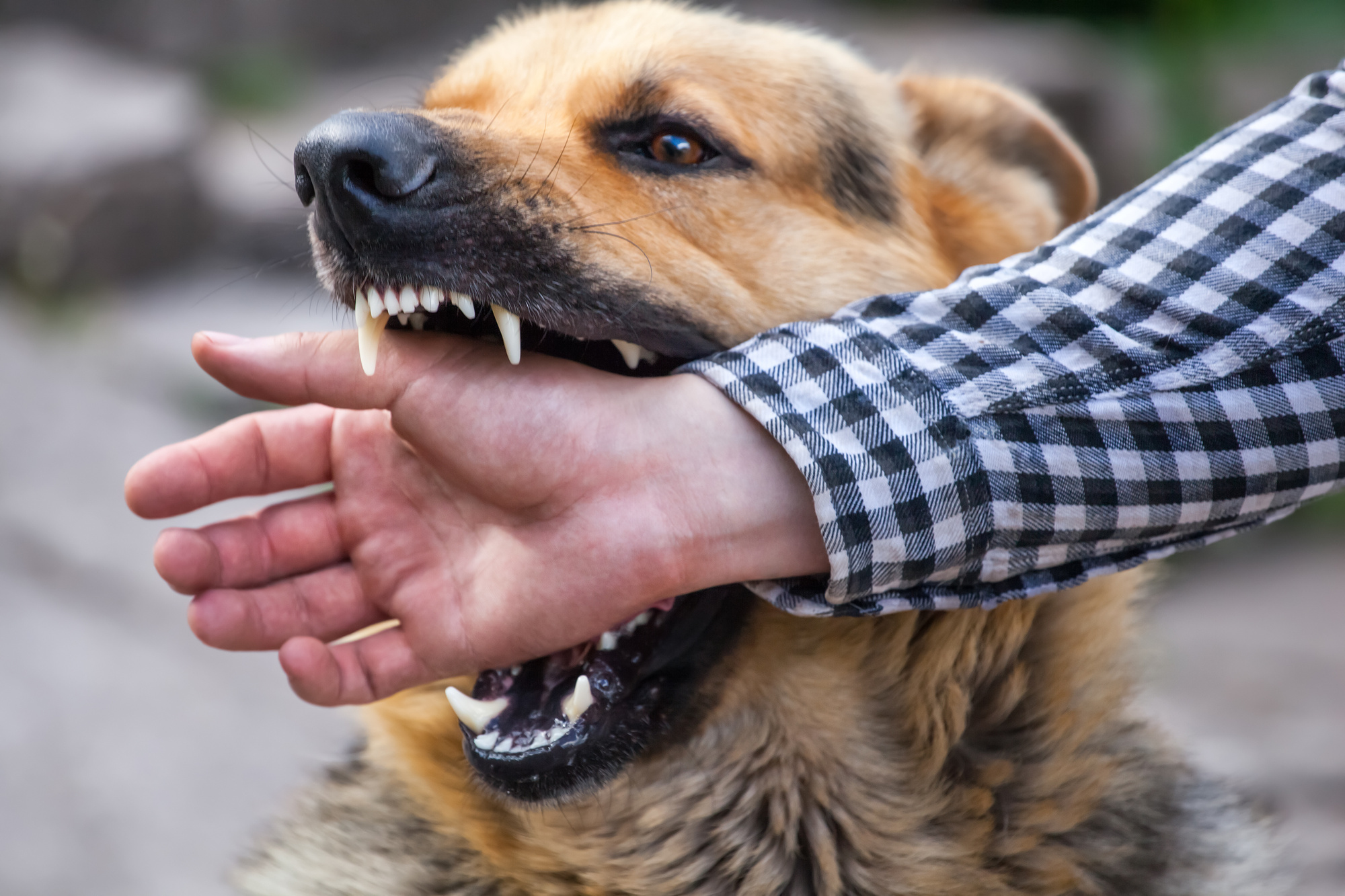 what to do after a dog bite